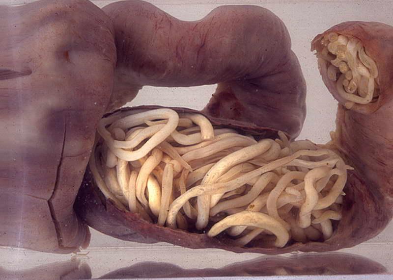 таблетки паразитов в человеке