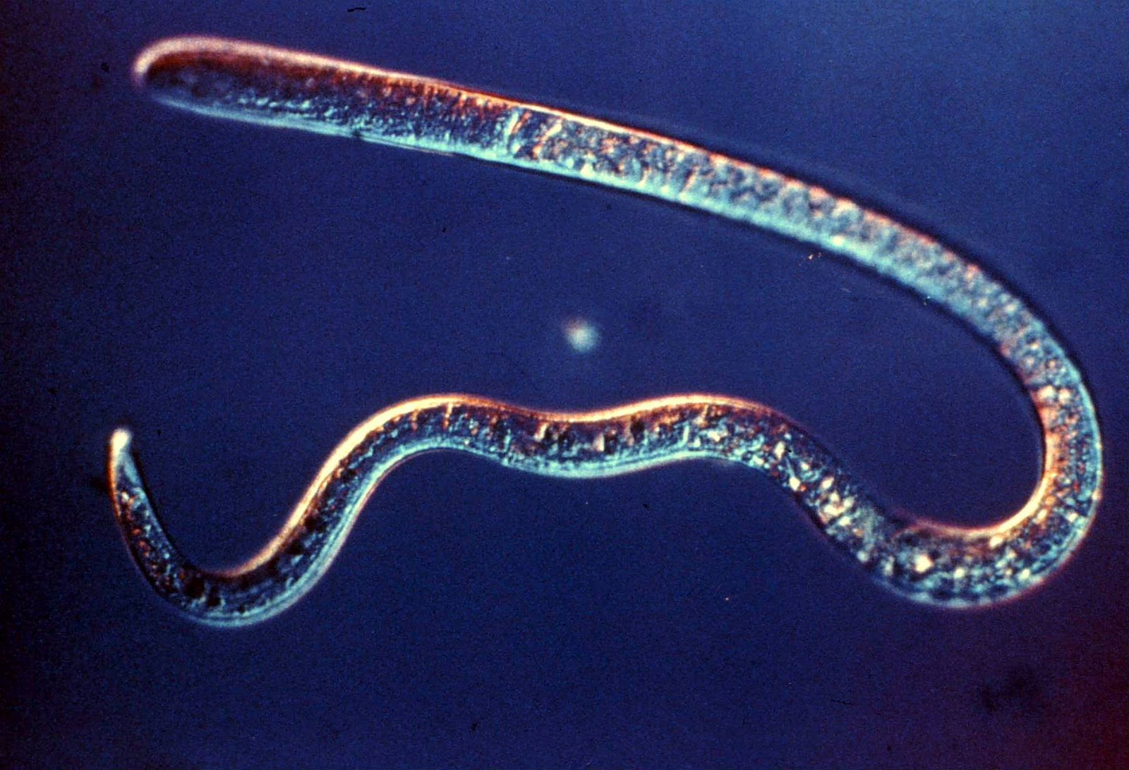 какие паразиты живут теле человека