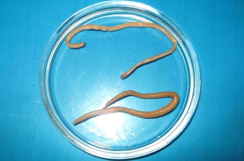 вывести паразитов из организма человека содой