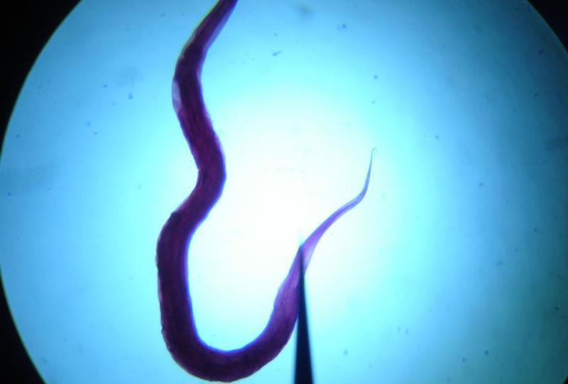 чесночные клизмы от паразитов рецепт
