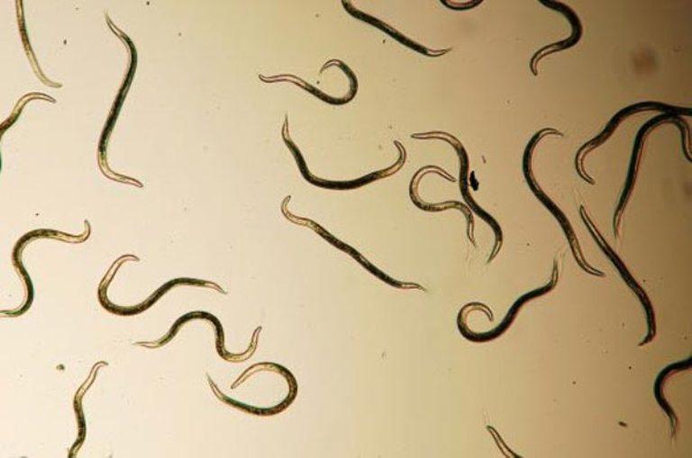симптомы паразитов взрослого человека