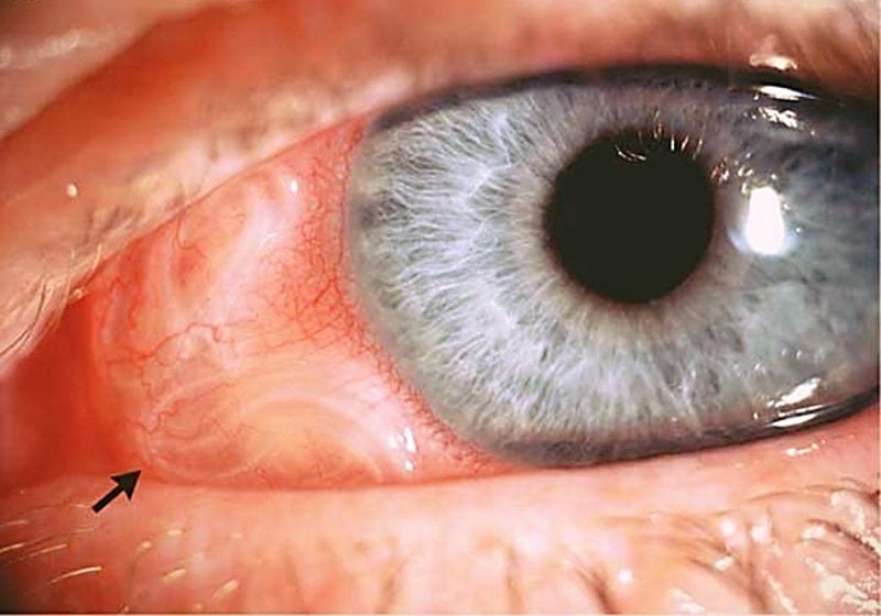 Глазной филяриоз