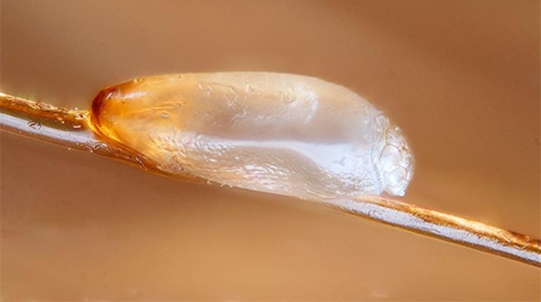 паразиты в волосах человека фото
