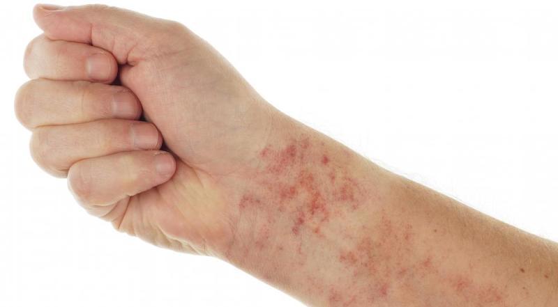 Аллергия на коже от паразитов