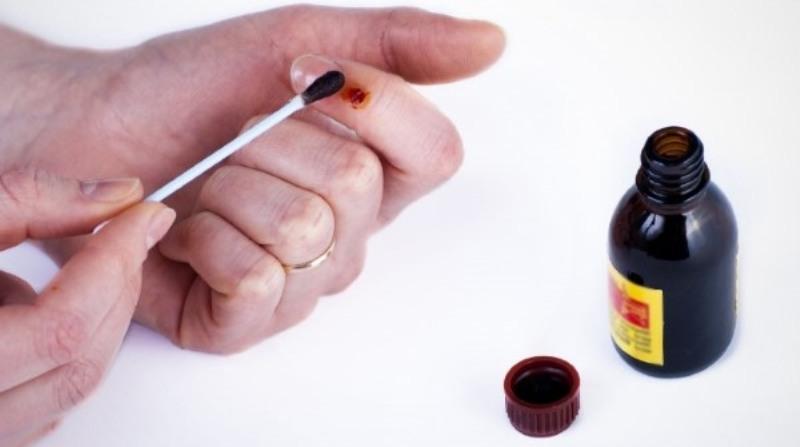 Обработка раны йодом