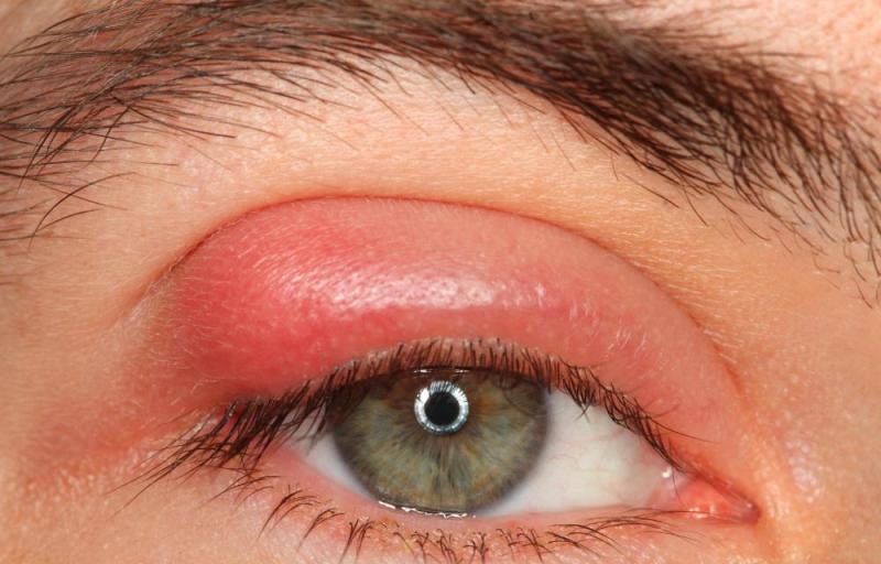 Отек глаза от нейроцистицеркоза