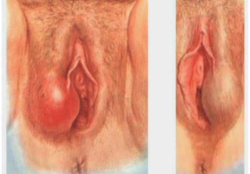 Отёчность половых губ