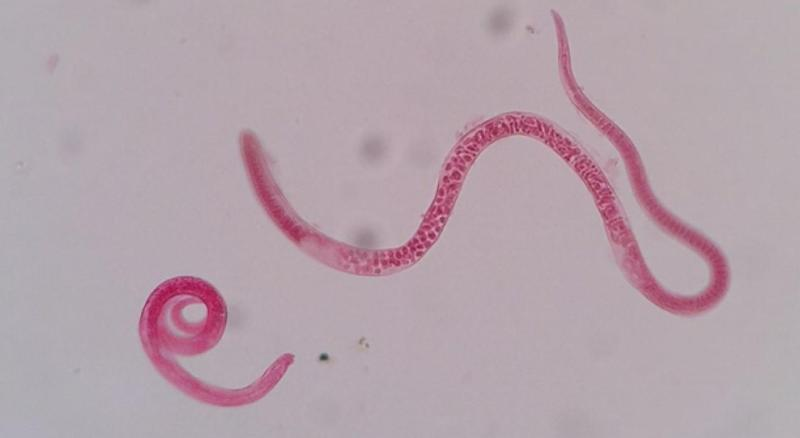 trichianella spiralis Trichinella [trik″ĭ-nel´ah] a genus of parasitic nematodes (roundworms) t spira´lis is a species found in the striated muscle of various animals, and causes trichinosis.
