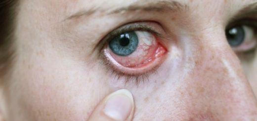 Могут ли быть глисты в глазах?