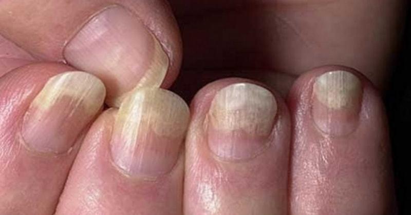 Нездоровые ногти