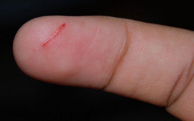 От чего сдирается кожа на пальцах рук