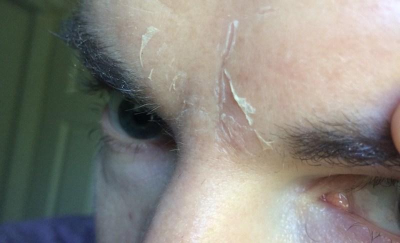 Шелушение кожи от ленточного червя