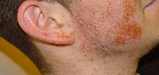 Симптомы стафилококка на коже