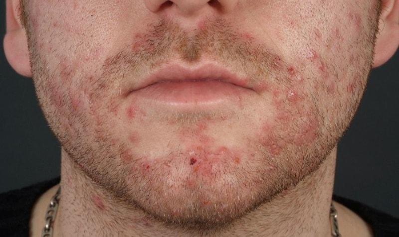 Стафилококковый сикоз на лице