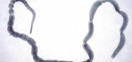 Нейроцистицеркоз – черви в голове