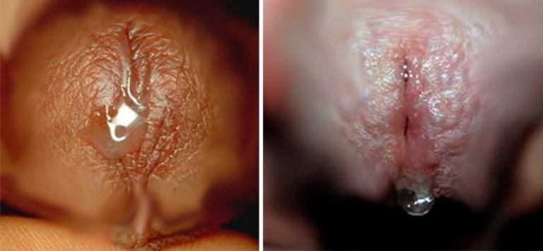ВИЧинфекция у мужчин и женщин  признаки симптомы