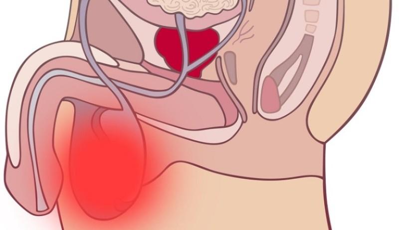 Воспаление придатков яичка