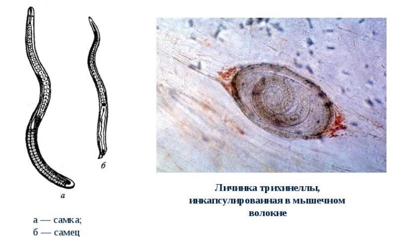 Яйцо трихинеллы в мышечном волокне