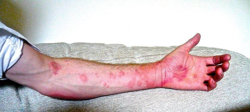 Хроническая аллергия