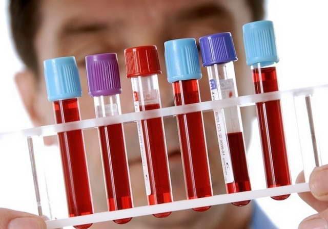 Анализ крови на паразитов – как сдать и расшифровать результат