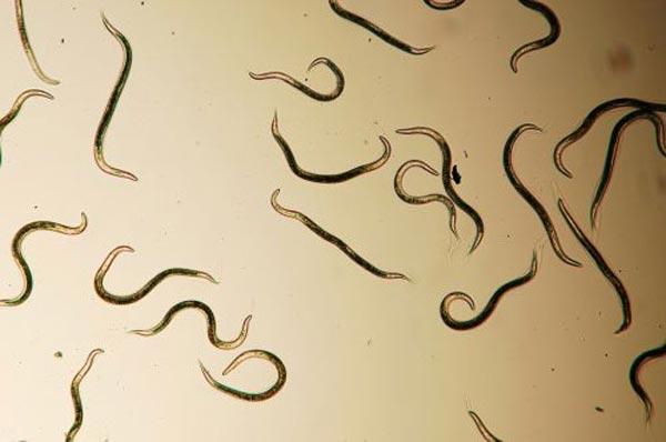 Как узнать, есть ли глисты у человека