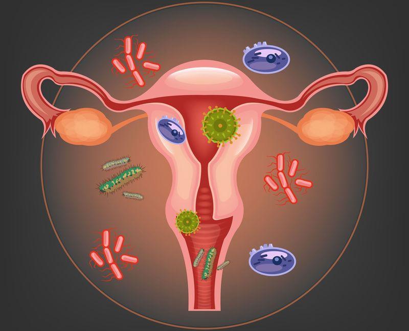 нарушение биоценоза влагалища при микоплазмозе
