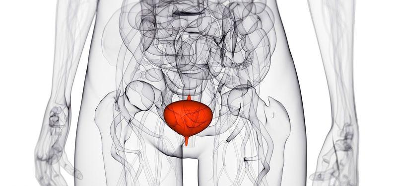 Воспаление мочевыводящих путей